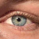 VerbeterMijnHuid - de huid rond de ogen