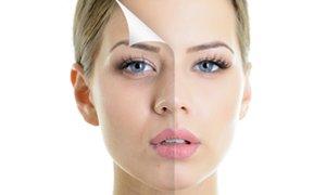 Huidverjonging: ga huidveroudering te lijf!